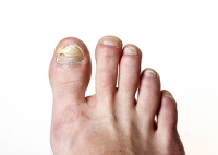 What Causes Toenails to Turn Yellow?