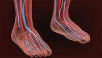 Diabetes and Poor Circulation in the Feet