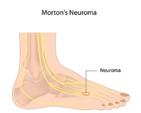 Morton's Neuroma & the Toes