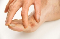 What Causes a Tailor's Bunion?
