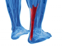 What Happens During an Achilles Tendon Rupture